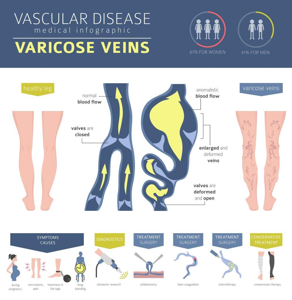 varicose veins made simple